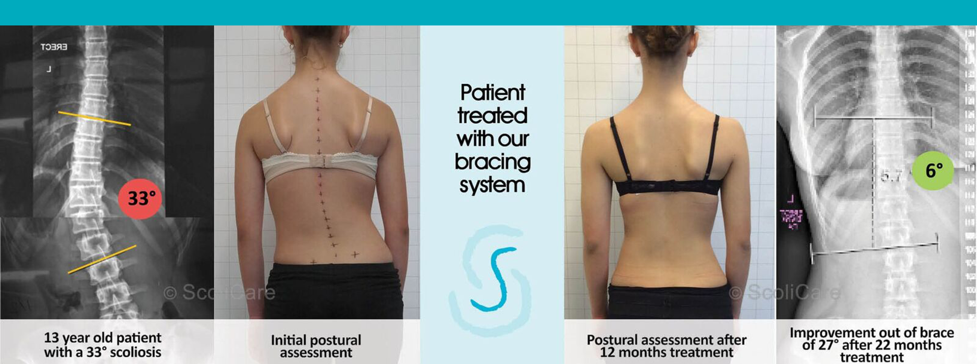 We are a unique Gold Coast Scoliosis Therapy Clinic