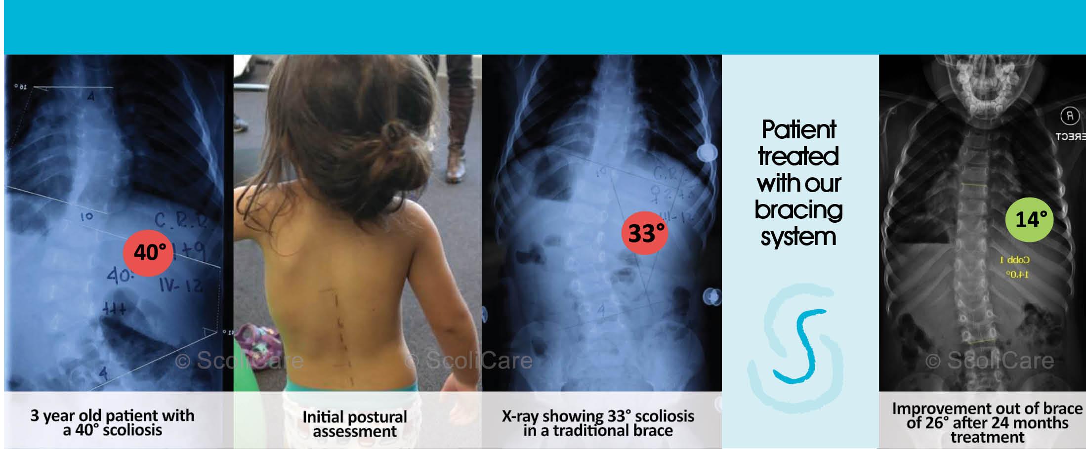 image of scoliosis back brace