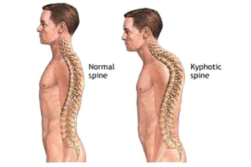 image of kyphosis